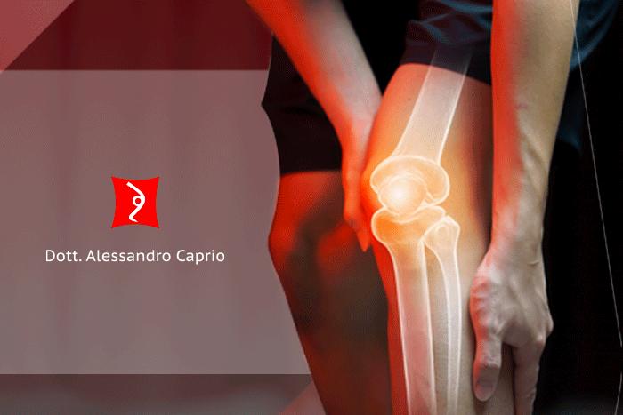Protesi ginocchio - Quando ricorrere alla protesi