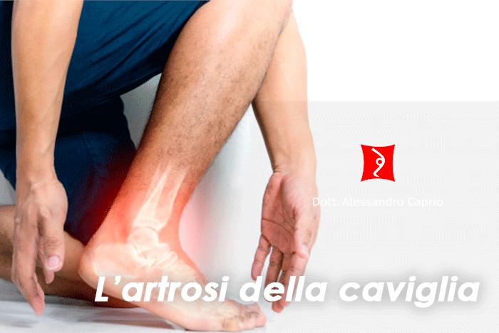 artrosi caviglia