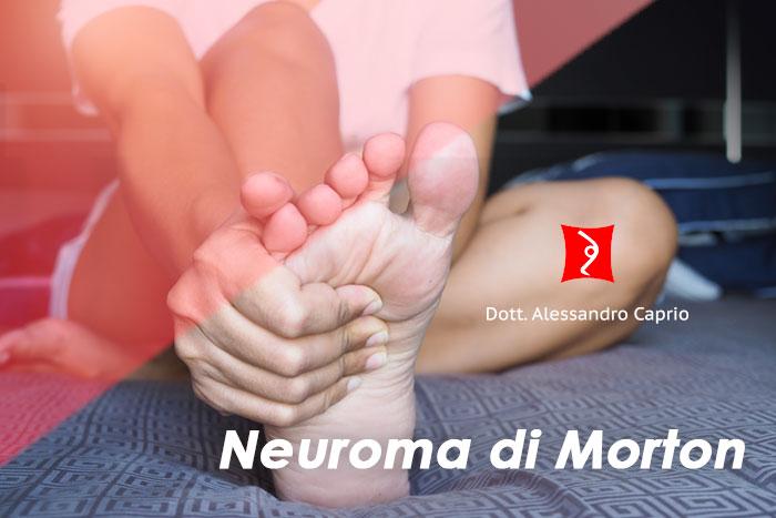 trattamento neuroma di morton