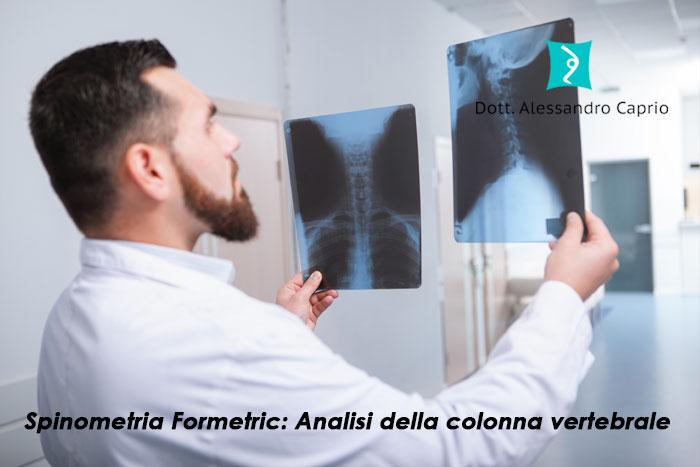 spinometria formetric